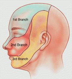 trigeminal neuralgia diagnosis