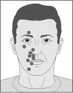 inflammation of the trigeminal nerve on the face