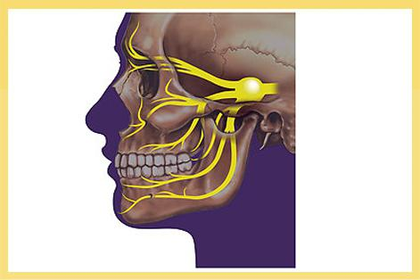 trigeminal neuralgia treatment