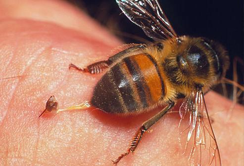 Укусила пчела, что делать?
