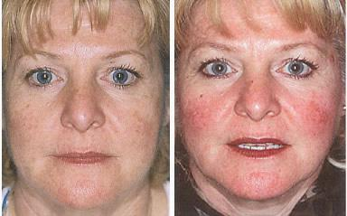 rosacea on face treatment