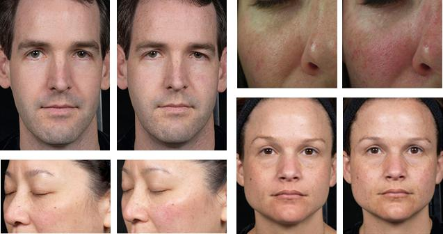 rosacea laser treatment reviews