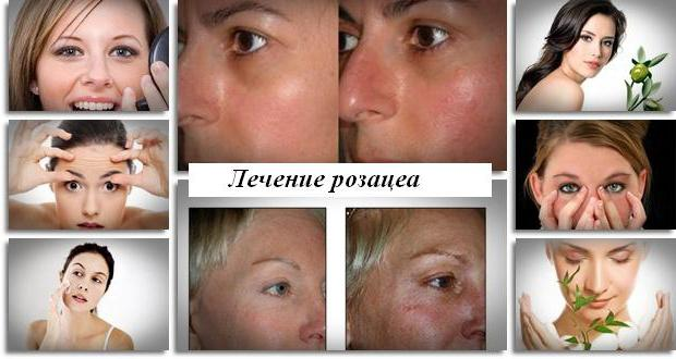 rosacea facial treatment reviews