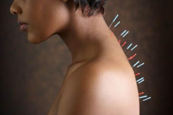 головокружение при шейном остеохондрозе лекарства