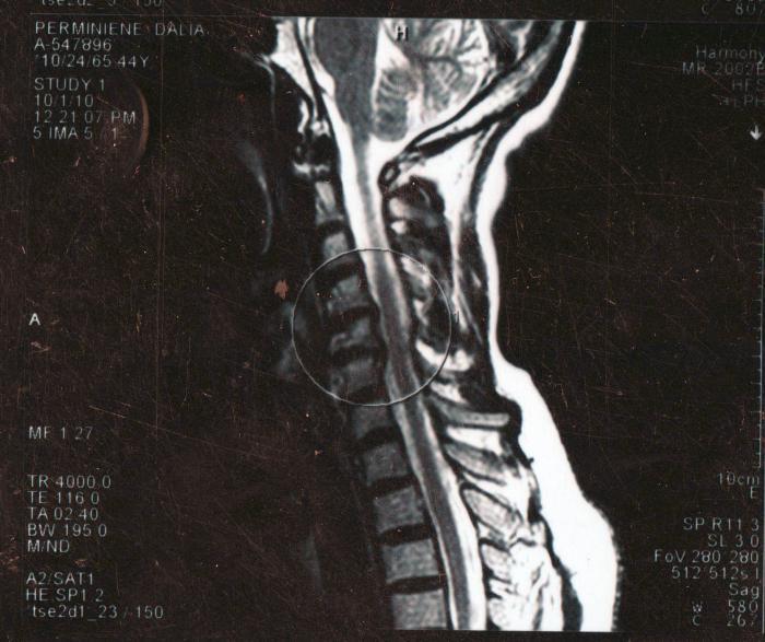 Шейный остеохондроз боли в шее и затылке
