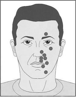 neuropathy of the facial nerve