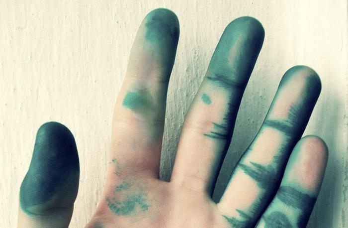 чем отмыть зеленку с рук