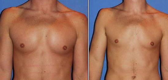 Прибор для лечения простатита у мужчин