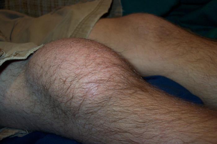 knee bursitis symptoms treatment