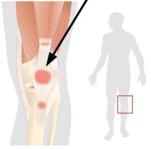 leg pain below the knee