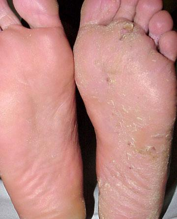 foot fungus symptoms and treatment