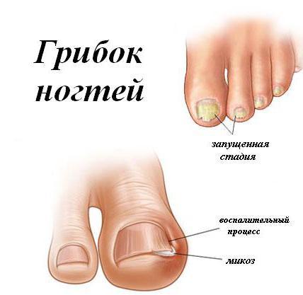 Грибок ногтей определение