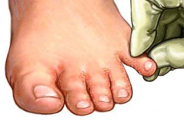 Лечение трещин на руках около ногтя