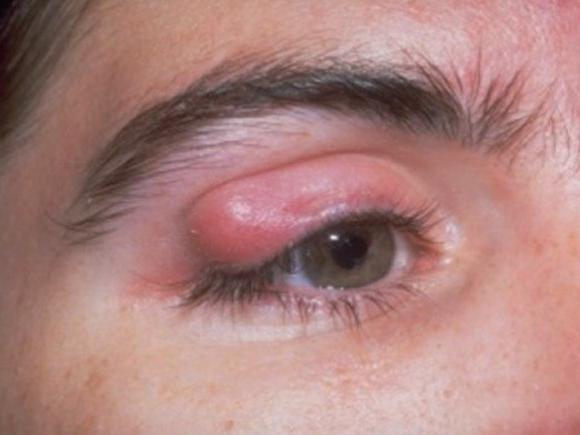 какие симптомы при паразитах у человека