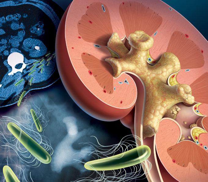 камни в почках диета правильное питание