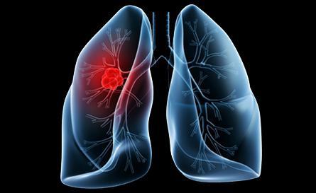 Народное лечение рака легких