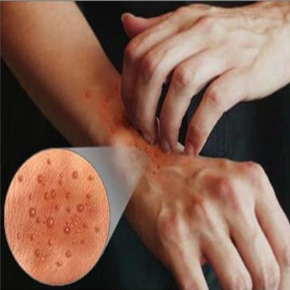 Сыпь на коже. Лечение