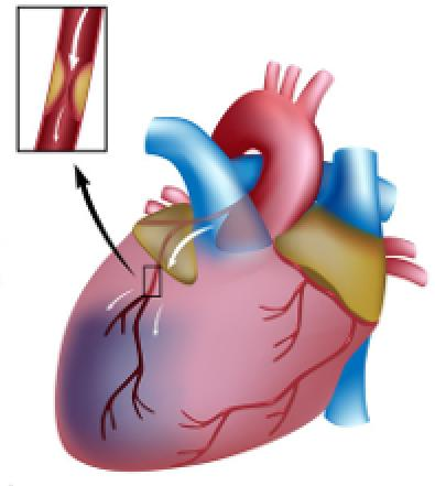статины для снижения холестерина крови