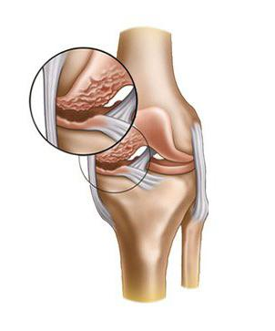 The degree of osteoarthritis of the knee