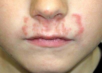 Вирусная пузырчатка у детей: симптомы и лечение - здоровье и спорт