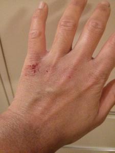 Avitaminosis. Symptoms on hands