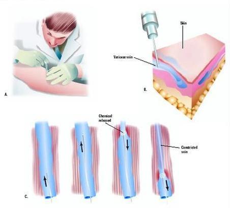 гепариновая мазь от варикоза при беременности