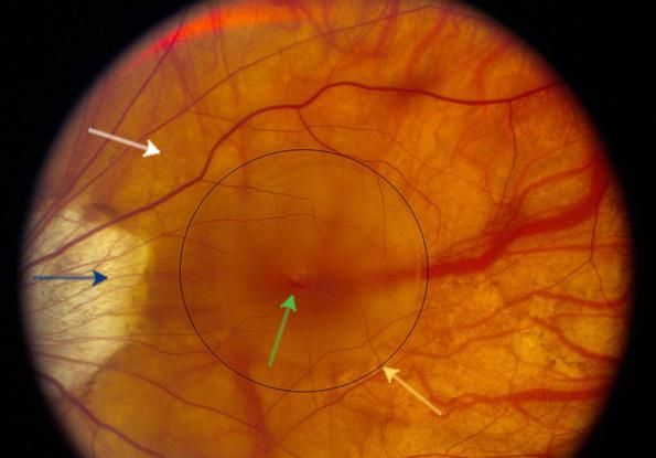 chorioretinal dystrophy of the retina