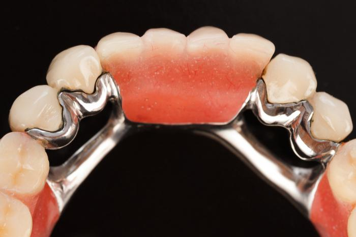 Почему болят все зубы одновременно: что делать, если болят все зубы