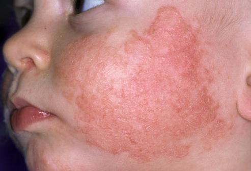 аллергия на хлеб у ребенка симптомы