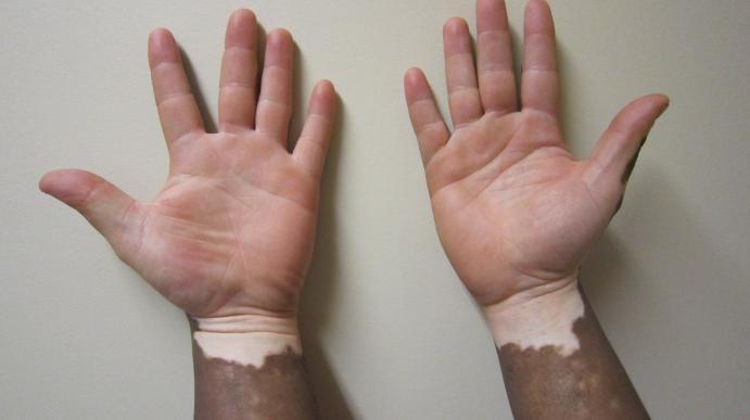 Белые пятна на коже что это и как лечить