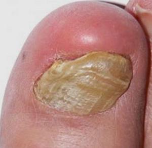 Псориаз ногтей - лечение. Псориаз на ногтях - фото