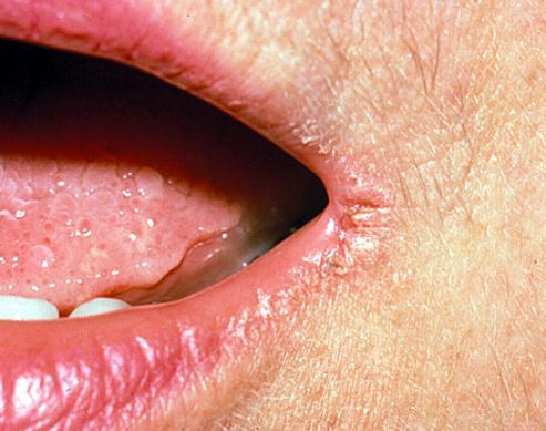 Как вылечить заеды в уголках рта у беременных 15