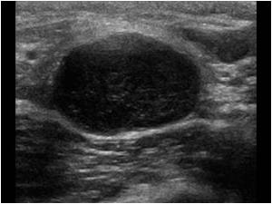 lymph node inflammation in the groin in women