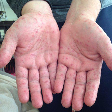 Вирус коксаки симптомы у детей фото - dc7f5