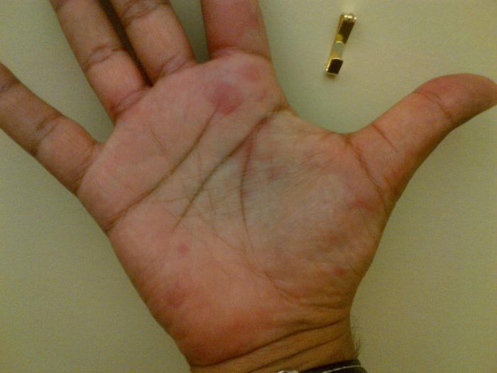 Пятно на руке у ребенка фото