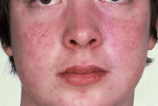 пищевая аллергия под глазами