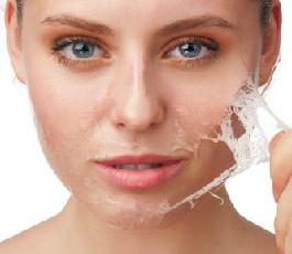 salicylic acid recipe for acne