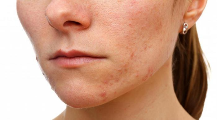salicylic acid acne reviews