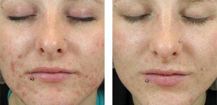 salicylic acid acne solution