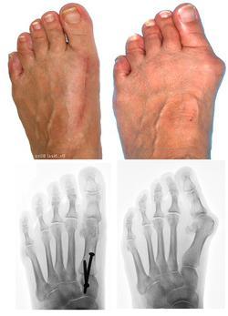 Шишки на пальцах ног как избавиться