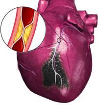 aspirin cardio instructions for use
