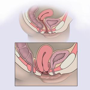 признаки опущения матки