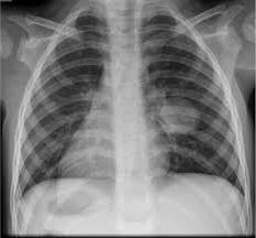Как делают и что показывает рентген грудной клетки