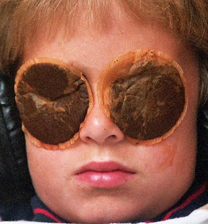 Как снять опухоль с глаз: от аллергии, от слез, от ячменя, после .