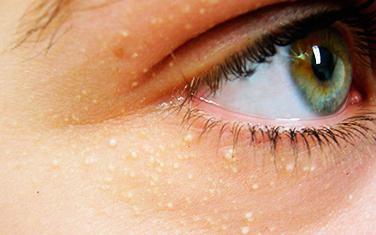 Чем лечить жировик на глазу