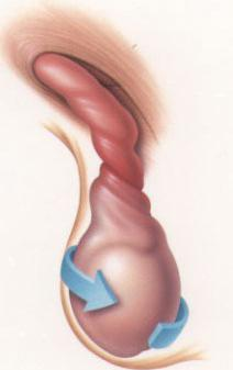 torsion of testicle in boys