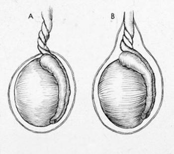 testicular torsion in men