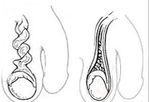 testicular torsion treatment