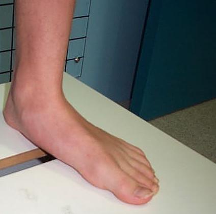 тяжесть в ногах после тренировки