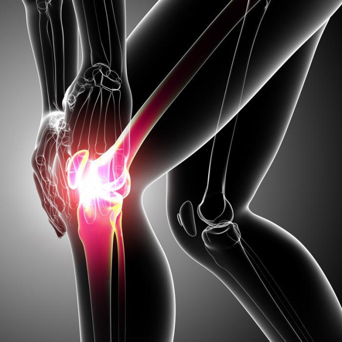 Изображение - Острое воспаление коленного сустава 591503